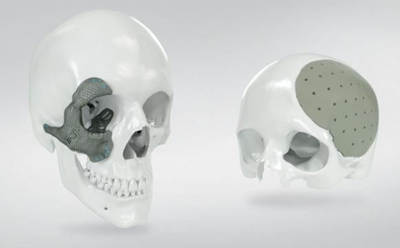 Maxillo facciale